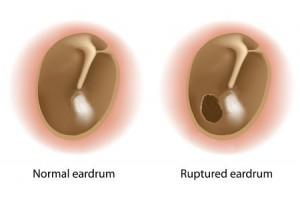 Hole in EarDrum